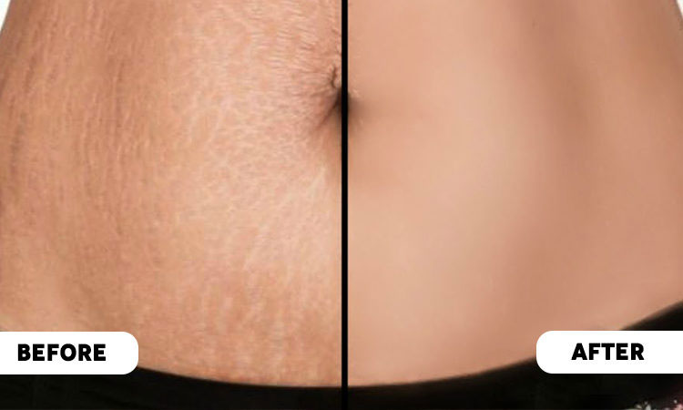 Pregnancy Stretch Mark Removal in Bhubaneswar